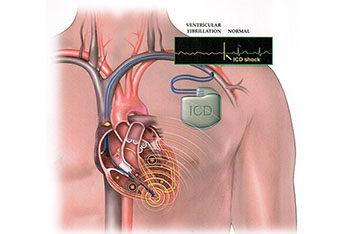 Новий стандарт ISO на активні медичні прилади, що імплантуються